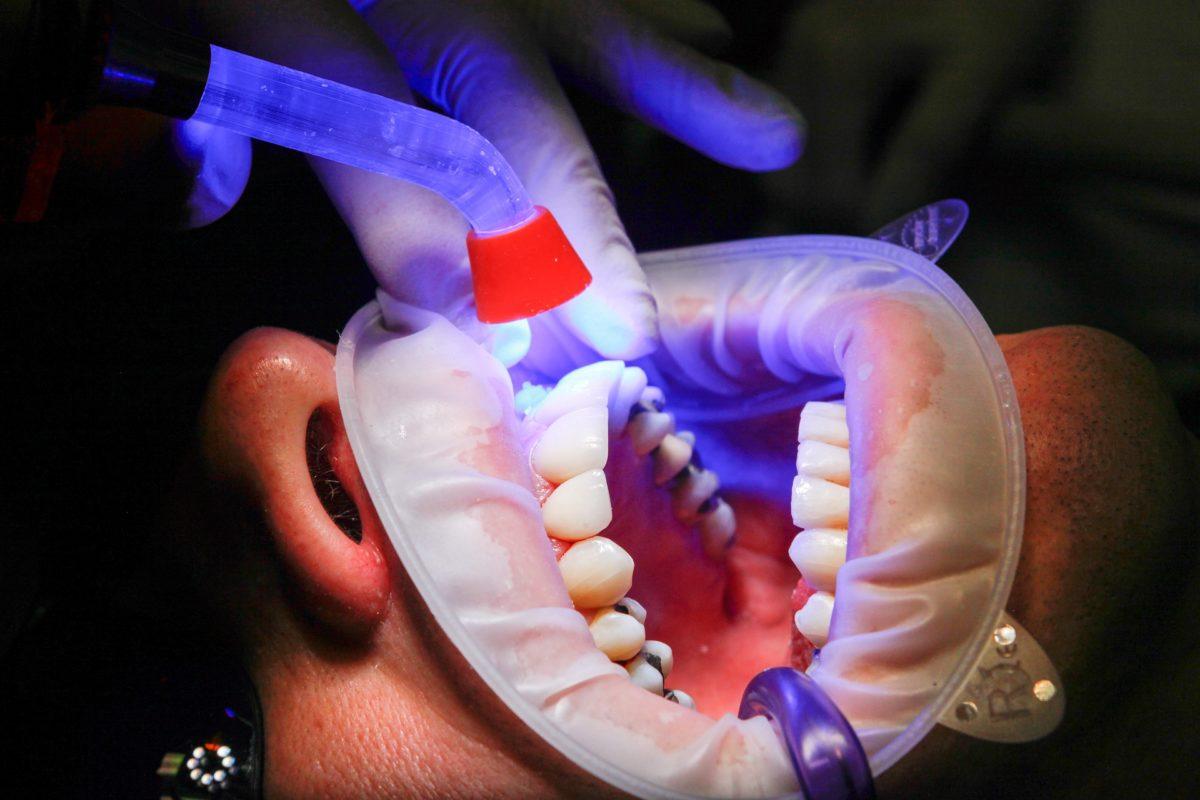 Zła metoda żywienia się to większe deficyty w jamie ustnej natomiast także ich zgubę